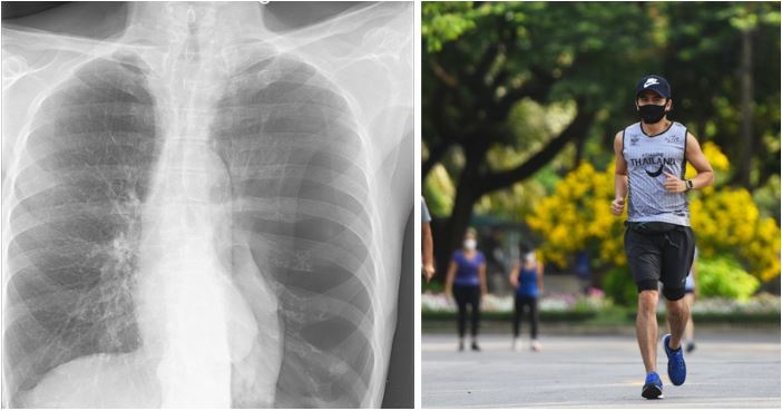 Jogger's Lung Collapses After Running With Face Mask