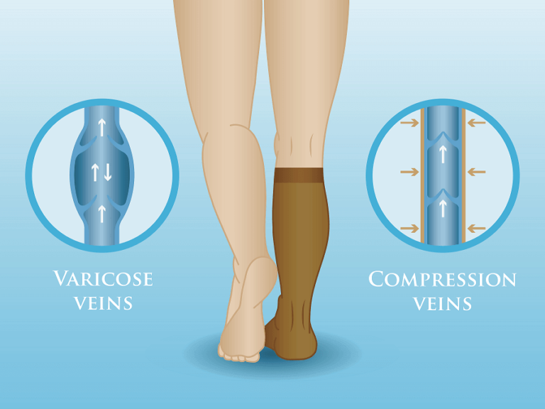 how does compression socks work